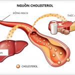 Báo động tình trạng thừa cholesterol ở người Việt